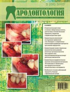 parodontologiya